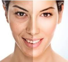 Iran Cosmetic Surgery5