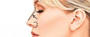 Iran Nose Surgery2